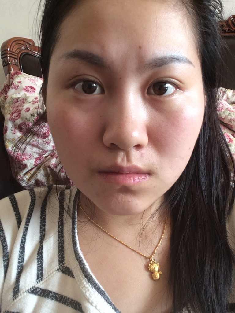 芭比隆鼻怎么样,我可以做芭比鼻吗?还有我的唇部不完美人中的地方有个疤痕是小的时候狗咬的,想变的更美丽
