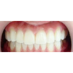 牙齿矫正案例  矫正牙齿要多少钱