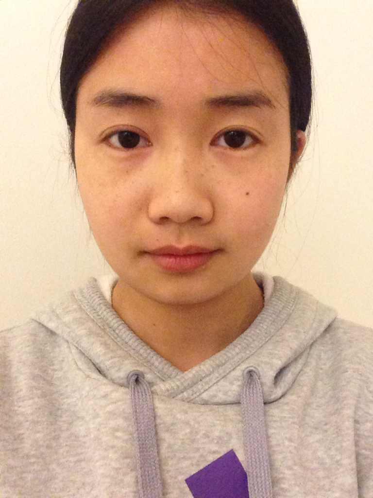 去颊脂垫瘦脸明显吗,帮我看看我的脸需要哪些改变,一年前做过埋线双眼皮,但是不满意,想咨询咨询