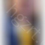 如何去除嘴角疤痕,嘴角不知道是皱纹还是疤痕什么,怎么去除