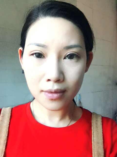 眼袋法令纹怎么消除,我应该整哪里能变的漂亮些