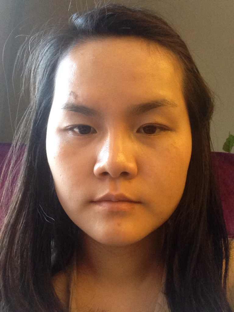 微整形整脸型效果好不好,不知道微整形对我的脸型有效果吗