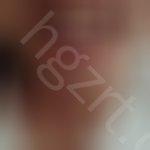 美容冠有没有副作用,医生请问像我牙齿的情况,我想用最快的方法矫正,我朋友说可以做美容冠,但是会不会随着年龄增长,牙齿会更加松动或者咬东西也使不上力,请您给点建议