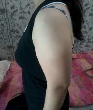 手臂、副乳吸脂案例来啦,有后遗症不