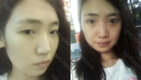 所以决定做埋线法双眼皮、开内眼角、硅胶隆鼻和脸部自体脂肪移植整形手术