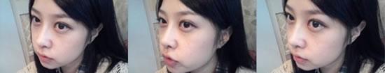 脸部自体脂肪+双眼皮+鼻子,3D立体整形案例