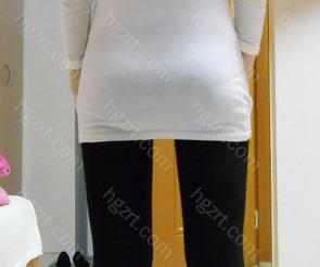 我的身高是160Cm! 体重是45kg!比手术前变瘦了2Kg!  手术效果好不错吧?哈哈
