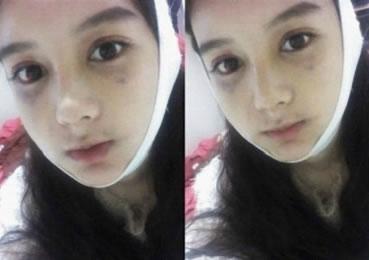 棱角下巴矫正+埋线法双眼皮+注射肉毒素痩脸+硅胶隆鼻+3D回转颧骨+脸部自体案例