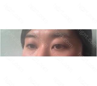 我终于做了双眼皮和隆鼻整形手术!!!