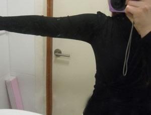 想知道手臂吸脂可以瘦几厘米?来看我的案例