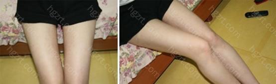 手术后 左边是手术后1个月的照片。 右边是手术后2个月的照片。 手术后每周都去医院做了术后管理~ 术后管理对消肿非常有帮助的1