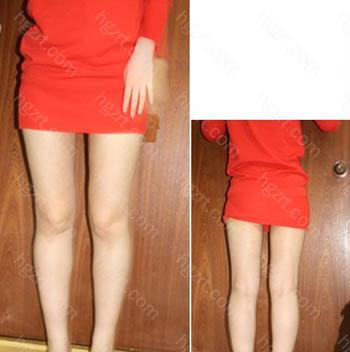 手术后2个月 比手术前更变瘦啦~哈哈 腿线条越来越变漂亮的~