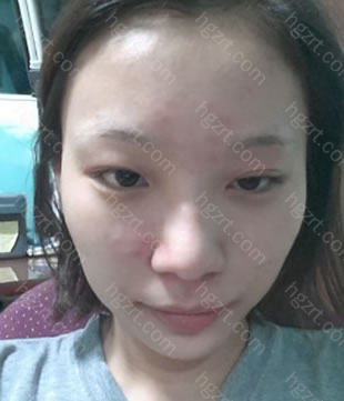 鼻部(鼻梁+鼻尖(耳朵软骨)+鼻翼缩小)整形手术!!!