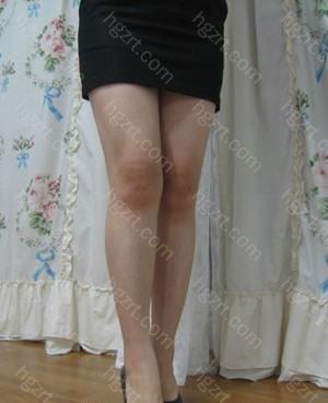 手术后7个月 腿线条真漂亮的!