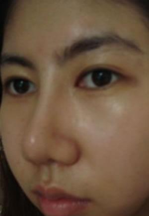 埋线法双眼皮+硅胶隆鼻整形案例,美不美