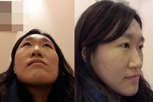 不对称面部+长脸+宽鼻梁矫正+硅胶隆鼻+开内眼角+埋线法双眼皮案例