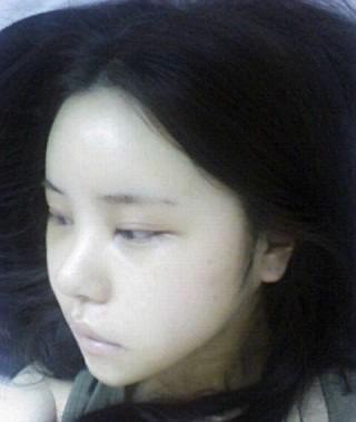 棱角下巴矫正+3D回转颧骨+下颚内缩+脸部自体脂肪移植案例