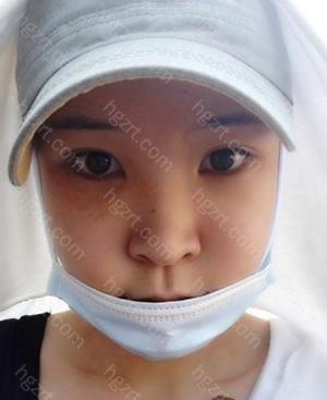 手术后带着帽子和口罩的正面照!