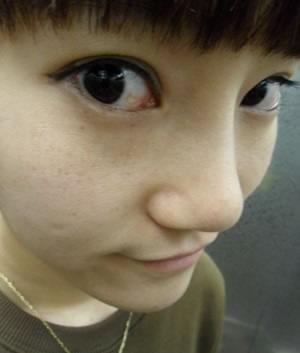 硅胶隆鼻+鼻尖移植软骨整形案例,脸终于立体了!