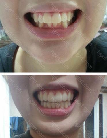 经过牙齿拥挤治疗后有了整齐的牙齿