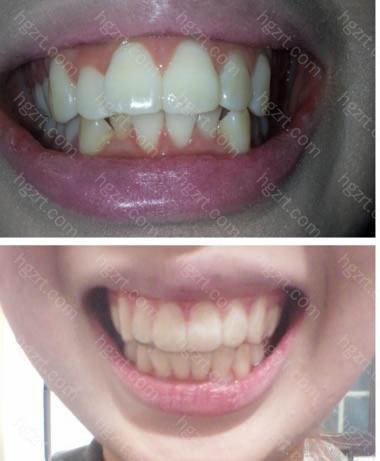 上面是治疗前,下面是治疗后的照片。凸嘴也改善了很多。