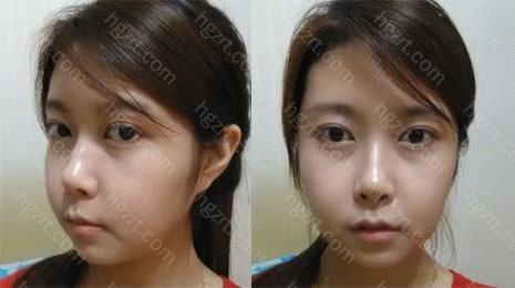 手术后6周 脸颊上的肿气随着时间的过去渐渐的消去了。