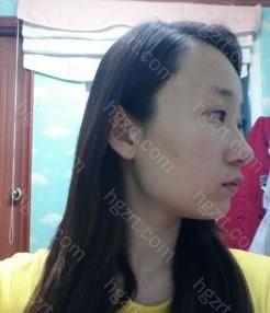 大家好~做双眼皮+隆鼻+轮廓手术后3个月了~