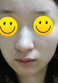 鼻子整形手术(鼻梁