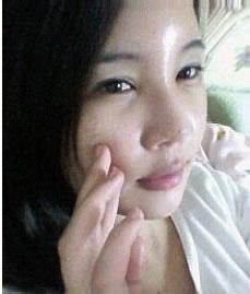 misko隆鼻+脸部脂肪移植案例,大家看效果好吗