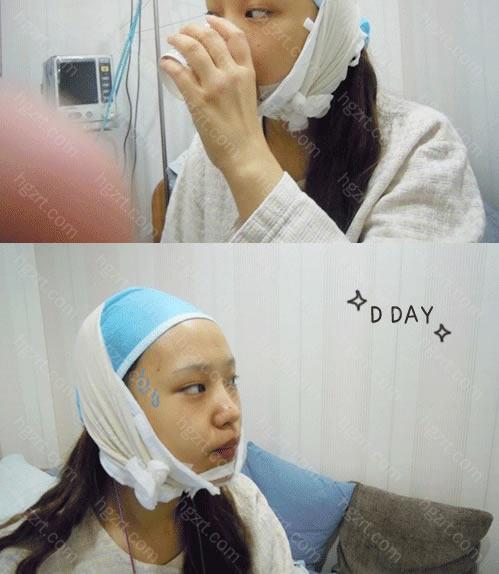 下图这是手术后的照片