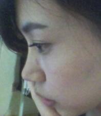 Misko隆鼻案例,做了Misko隆鼻3个月感觉不错