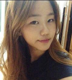 看看我做的长脸手术+V-LINE瓜子脸手术案例