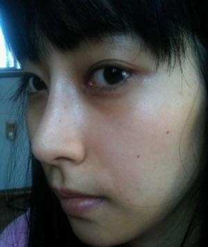 本人做了Misko隆鼻手术1个月后记,来看案例