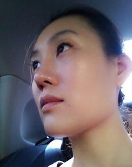 给大家分享我的埋线法双眼皮+硅胶隆鼻整形案例