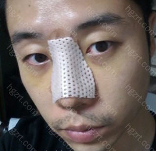 下图是手术后第4天的样子!