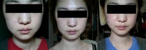 皮肤激光美容案例,IPL激光美白对皮肤损伤大不