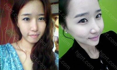 我做了V-LINE瓜子脸手术+QUICK颧骨缩小手术