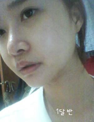 看我的V-LINE瓜子脸手术+QUICK颧骨缩小案例