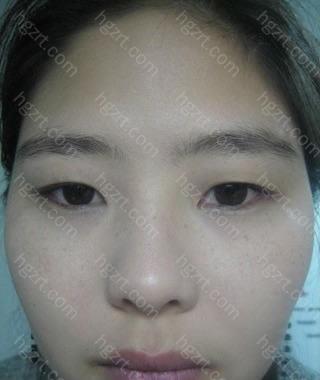 我在4个月前做了自然结合法双眼皮+开内眼角+切除鼻中隔软骨整形手术