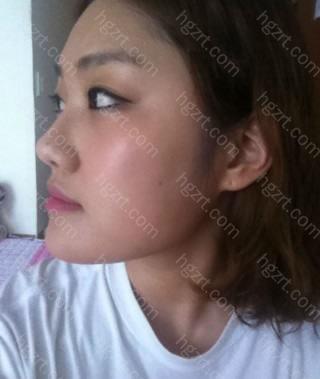 术前的照片!没吃惊了吧。。。? 术前我真的讨厌了我的脸。。。