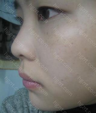 我就手术了眼睛和鼻子