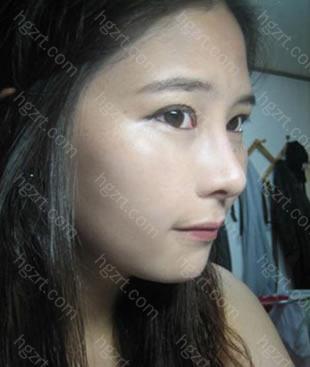 手术后的变化还真大。鼻梁高了后,觉得脸型变漂亮了。好像做V-line瓜子脸手术一样。有一举两得的效果。