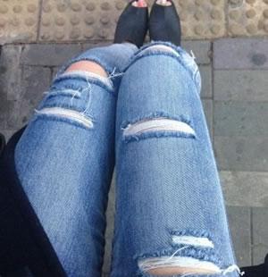吸脂瘦大腿手术案例,瘦大腿吸脂多少钱合适