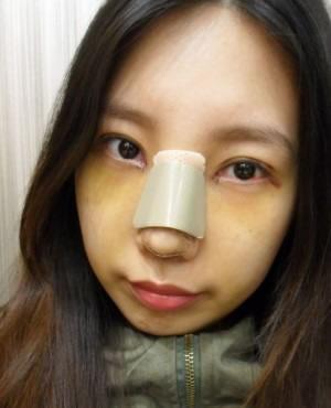 自然结合法双眼皮+开内眼角+切除鼻骨及软骨矫正鹰钩鼻+硅胶隆鼻+鼻尖移植软骨案例