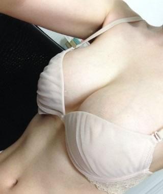 texture假体隆胸整形案例,大了就是美
