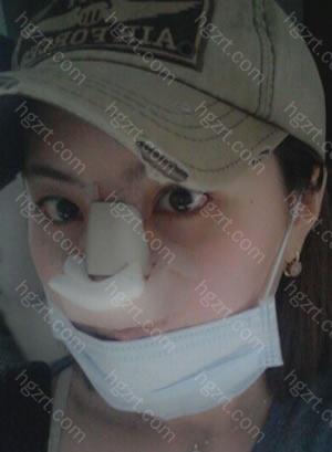 手术后第3天(隆鼻整形手术)