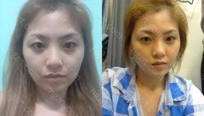 本来做面部轮廓整形手术的同时还做隆鼻整形手术