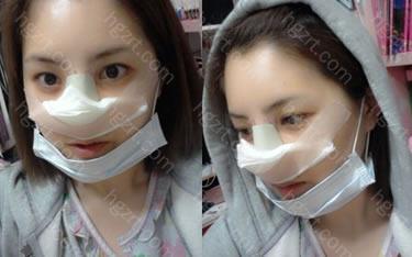 手术后(隆鼻整形手术)
