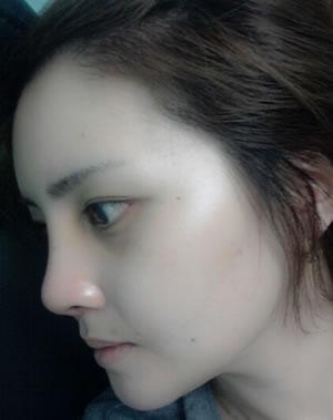 埋线法双眼皮+开外眼角+假体植入丰额头+眼底脂肪重排列去黑眼圈案例