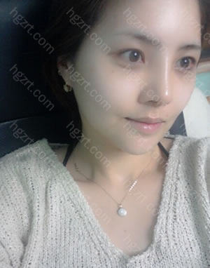 很神奇的是居然就做了隆鼻整形手术,但是给人的印象却改变了很多哦。